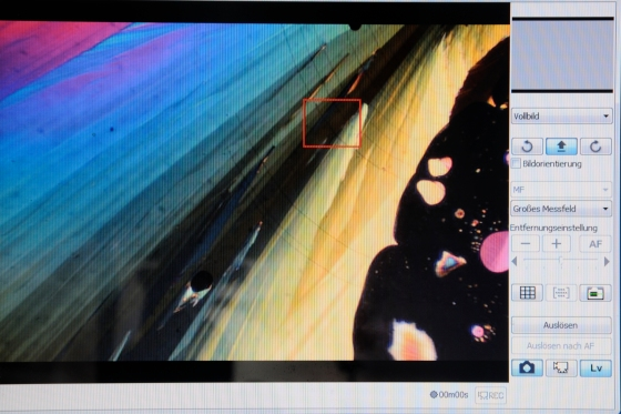 Das mikroskopische Bild auf dem Bildschirm.