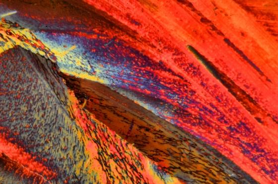 Mikrokristalle Harnstoff